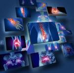Rheuma Rückenschmerzen