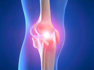 Kniegelenk mit Entzündung