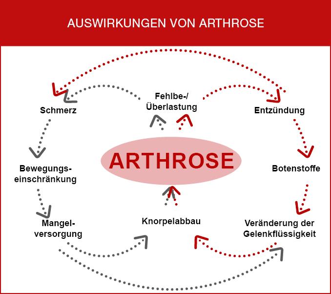 Auswirkungen von Arthrose