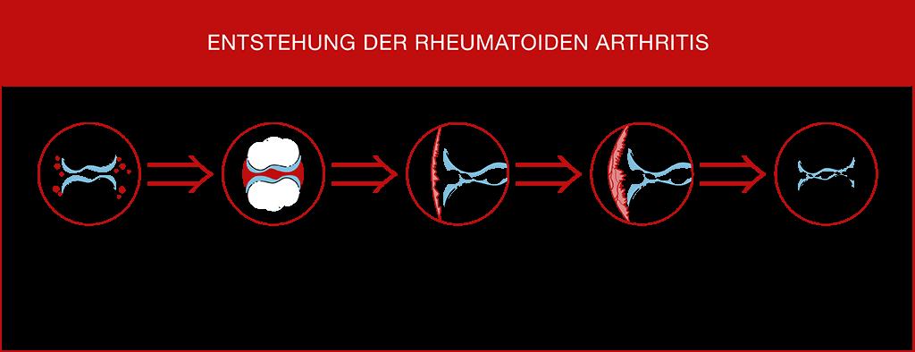 Enstehung der rheumatoiden Arthritis